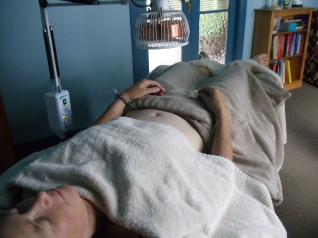 Patient having an acupuncture treatment